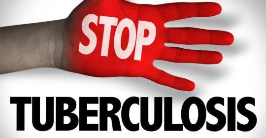 MENGENAL TUBERCOLOSIS (TBC)
